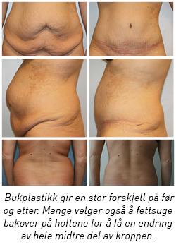 ubehag i nedre del av magen naking bilder